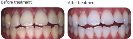 in office tooth whitening before and after photo
