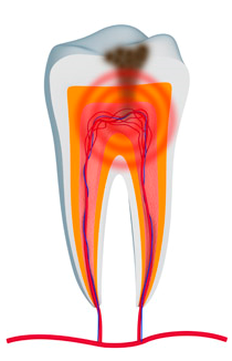 root canal for teeth