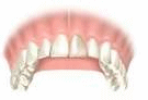 Tooth crown evaluation